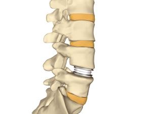 Das Leiden mit dem Rückenleiden